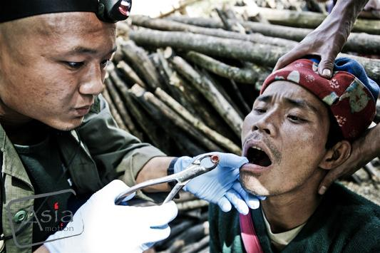 Photo story - The Burmese patient