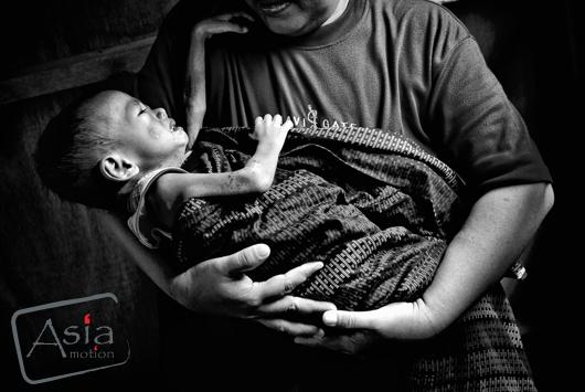 Photo story - Silent Emergency: Battling severe malnutrition in Southern Philippines