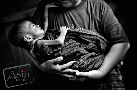 Photo storySilent Emergency: Battling severe malnutrition in Southern Philippines